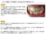 (写真)特に気になる下の歯を治したい