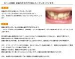 (写真)前歯の片方だけが奥に入ってしまっています。