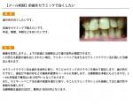 (写真)前歯をセラミックで白くしたい