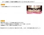 (写真)この歯の治療費はどれくらいかかると思いますか?