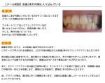 (写真)前歯2本が内側に入り込んでいる