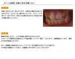 (写真)前歯二本を治療したい