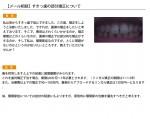 (写真)すきっ歯の部分矯正について