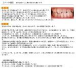 生まれつき下の顎が出て 受け口で噛み合わせも悪い コンプレックスで歯を出して笑えません