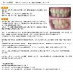 歯がガタガタ 口をあけて笑ったり自然に会話出来ない悩み 顎をひっこめ歯並びを綺麗にしたい