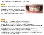 (写真)顎が小さく裏側矯正が難しいでしょうか