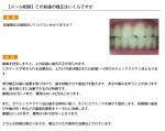 (写真)この前歯の矯正はいくらですか