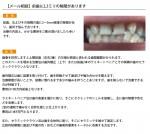(写真)前歯に2,3ミリの隙間があります