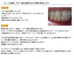 (写真)すきっ歯の前歯のみの治療を希望します
