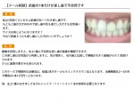 (写真)前歯の1本だけが差し歯で不自然です