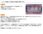(写真)上の歯のみの矯正は可能ですか