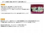 (写真)前歯2本のすきっ歯を治したい