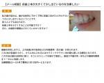 (写真)前歯が2本大きくて少し出ているのを治療したい