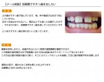 (写真)短期間ですきっ歯を治したい