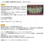 (写真)上前歯4本だけでも白く、綺麗にしたいです