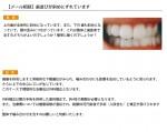(写真)歯並びが斜めにずれています