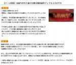 (写真)虫歯や折れた歯の治療は審美歯科でしてもらえますか