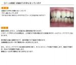 (写真)前歯が八の字になっています