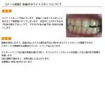 (写真)前歯のホワイトスポットについて