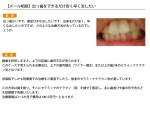 (写真)出っ歯をできるだけ安く早く治したい