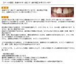 前歯のすきっ歯とでっ歯の矯正を 部分矯正で可能? 金額的にはどのくらい?