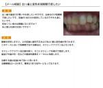 (写真)出っ歯と変色を短期間で直したい