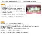 (写真)前歯の八の字になっている。どのような治療になりますか