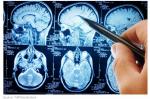 脳には「女性」「男性」の差異はほとんど存在しない