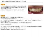 (写真)前歯が出ていて気になっています