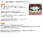 (写真)前歯が長く、下の歯がガチャガチャです