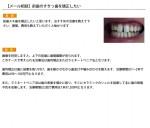 (写真)前歯のすきっ歯を矯正したい