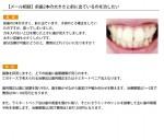 (写真)前歯2本の大きさと前に出ているのを治したい