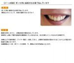 (写真)笑った時に歯茎が出る事で悩んでいます