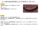 (写真)前歯の虫歯の治療をしてからその歯が黒くなって困ってます