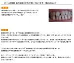(写真)歯の隙間がかなり開いております。矯正方法は?