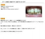 (写真)前歯のすきっ歯がきになります。費用と時間は?