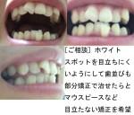 質問)ホワイトスポットは歯を削る治療をして被せ物などをしないと?