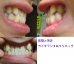 質問)今年20歳になる男です。自分で下顎前突、すきっ歯、八重歯