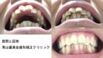 質問) 全体的に歯並びが悪い、前歯の2本だけでも真っ直ぐに治す