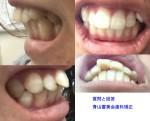 出っ歯で悩んでいます。前歯の裏側の部分矯正か、インビザライン