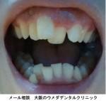 上の前歯のガタガタと下の前歯の八重歯が気になり部分矯正を