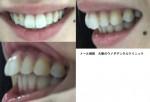 上前歯2本の出っ歯を治したい、矯正期間をとれないので為セラミックで治し