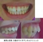歯並びが悪いのに悩んでおります。成人後出っ歯や横顔が酷く