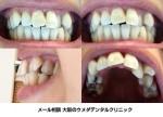 このように八重歯があり、ガタガタの歯並びで出っ歯なのですが綺麗な歯並びになる事は可能なのでしょうか?