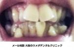 上の歯だけでいいので、矯正以外の方法で何とかしたい 歯並びの悪さ