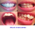 私は出っ歯で悩んでいます。 小2のときに一回矯正をしたのですが、一年くらいでやめてしまいました。