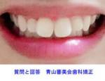 前歯が大きく、曲がって前に出ていることに悩んでいます。 これは部分矯正だけで治せますか?