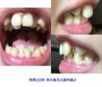上下の歯が前後にガタガタしています。横からの歯並びもとても気になります。