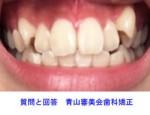 上の歯の凸凹と八重歯を綺麗に整えたいです。