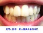 前歯が大きく尚且つ出っ歯を治したいです